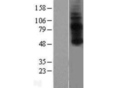 GPR3 Overexpression Lysate