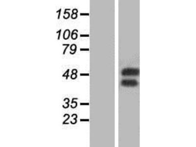 GM-CSFR alpha Overexpression Lysate