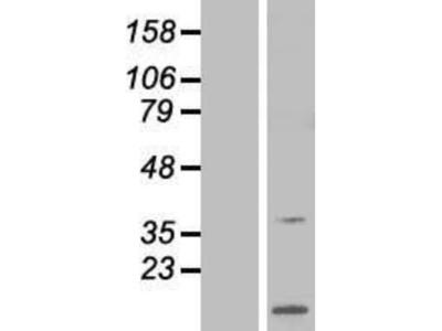 ARPP-21 Overexpression Lysate