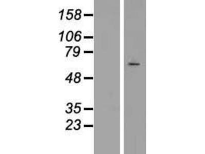 SRPK3 /STK23 Overexpression Lysate