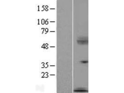 SECTM1 Overexpression Lysate