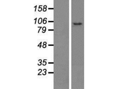 CCDC186 Overexpression Lysate