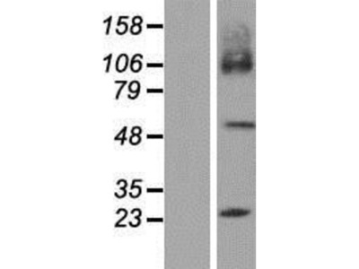 SLC7A7 Overexpression Lysate