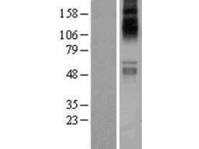 SLC1A7 Overexpression Lysate