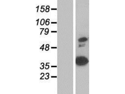 Annexin A8 / ANXA8 Overexpression Lysate