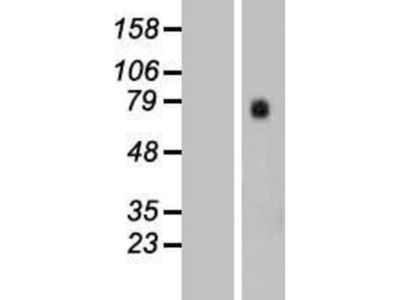 SLC7A10 Overexpression Lysate