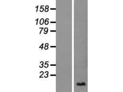 SLURP1 Overexpression Lysate