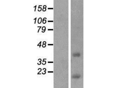 CCDC153 Overexpression Lysate