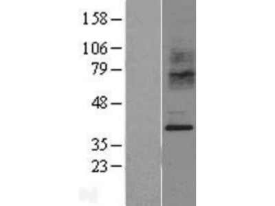 CCR2 Overexpression Lysate