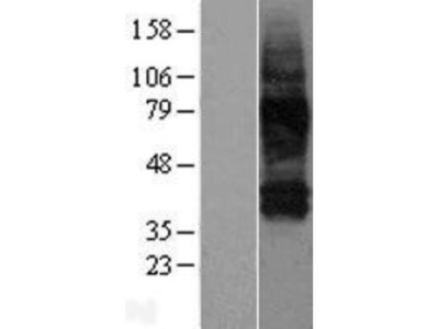 SLC38A3 Overexpression Lysate