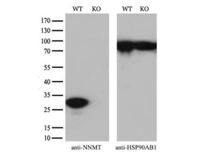 Nicotinamide N-Methyltransferase /NNMT Antibody (OTI3D8)