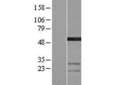AMSH-LP Overexpression Lysate