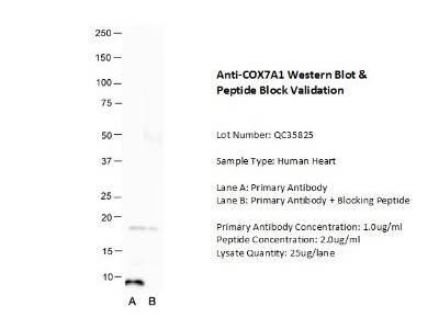 Rabbit Polyclonal COX7A1 Antibody