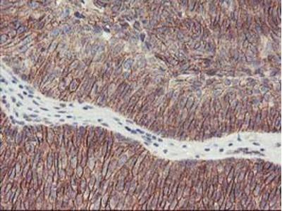 Mouse Monoclonal 15-Lipoxygenase 1 Antibody