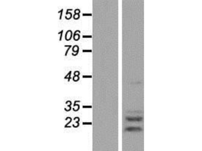 AGPAT2 Overexpression Lysate