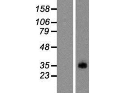 PRSS38 Overexpression Lysate