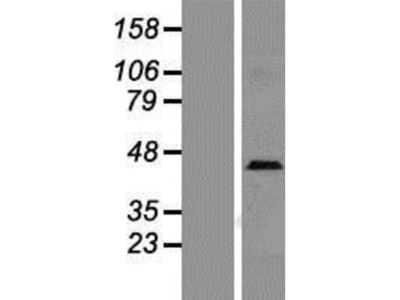 L-Selectin/CD62L Overexpression Lysate