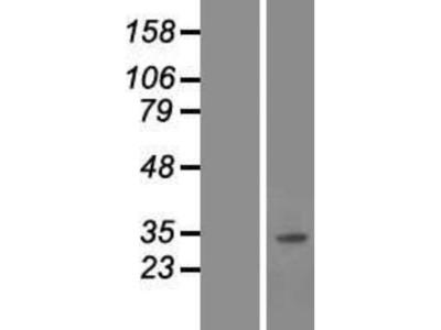 SNAI3 Overexpression Lysate
