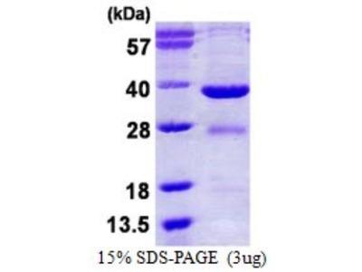 EYA2 Recombinant Protein