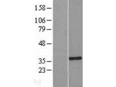 SULT1A3 Overexpression Lysate