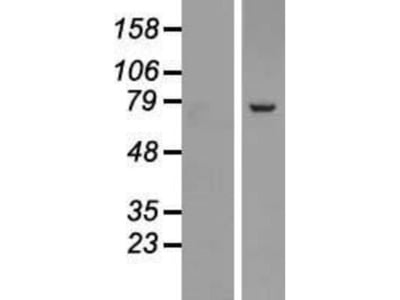 SRP72 Overexpression Lysate