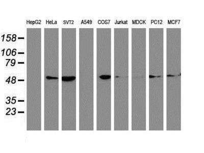 Mouse Monoclonal Tubulin Beta 4 Antibody