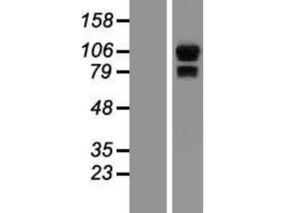 Synphilin-1 Overexpression Lysate
