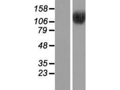 BRD8 Overexpression Lysate