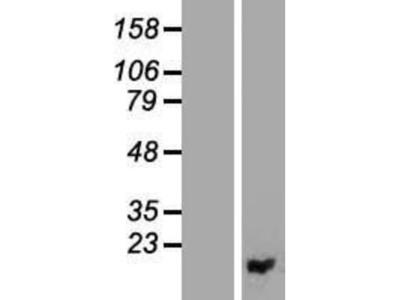 PIGF Overexpression Lysate