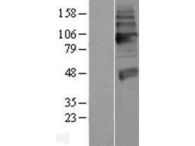 VAChT /SLC18A3 Overexpression Lysate