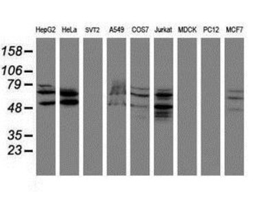 Mouse Monoclonal SENP2 Antibody