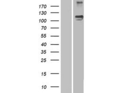 Semaphorin 5A Overexpression Lysate