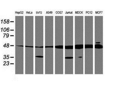 Mouse Monoclonal TUBAL3 Antibody
