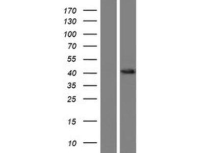 OSTalpha Overexpression Lysate