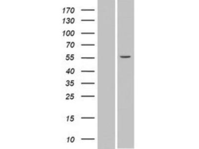 SPATA6 Overexpression Lysate