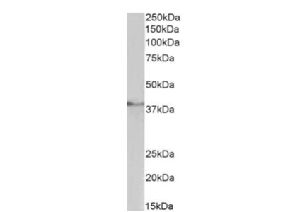 TATA binding protein TBP Antibody