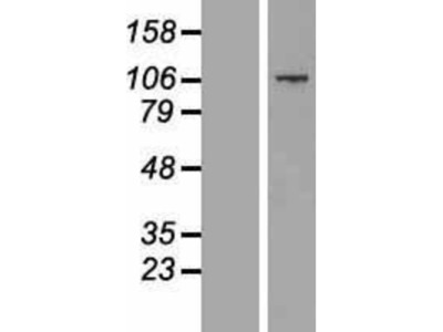 CCDC141 Overexpression Lysate