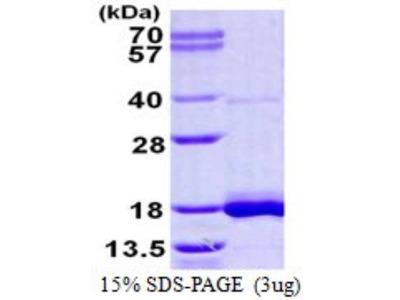 LSM3 Protein