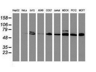 Mouse Monoclonal Cytochrome P450 2B6 Antibody