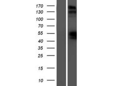 Natriuretic Peptide Receptor B Overexpression Lysate (Native)