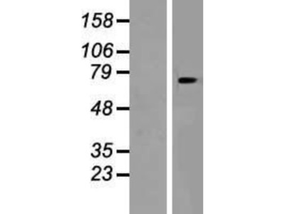 SLC24A6 Overexpression Lysate