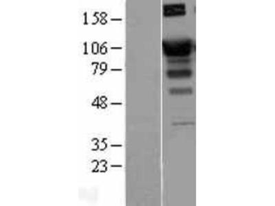 SATB1 Overexpression Lysate
