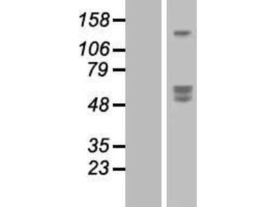 SIRP beta 1 / CD172b Overexpression Lysate
