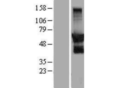 GPRIN2 Overexpression Lysate
