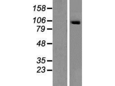 SECISBP2 Overexpression Lysate