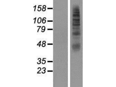 SLC2A11 Overexpression Lysate