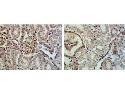 ADAM10 Antibody (RM0146-7H12)