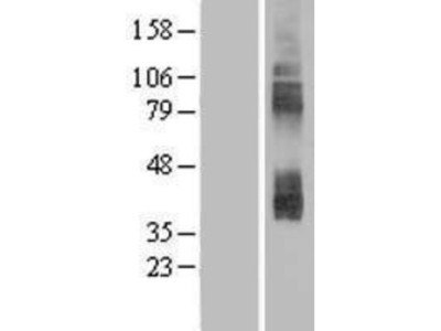 CAT3/SLC7A3 Overexpression Lysate