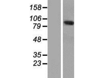 ANKRD5 Overexpression Lysate