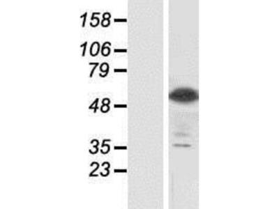 Siglec-8 Overexpression Lysate